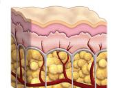 Facts and myths about cellulite